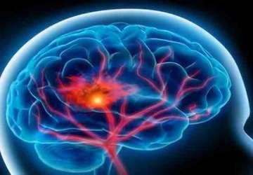 Beyin Kanamaları